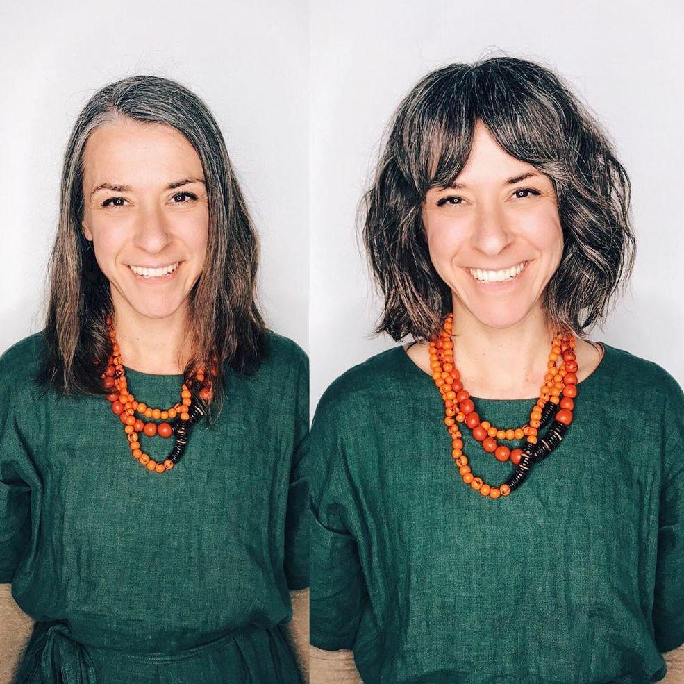 Girl receding hairline Female Hairlines: